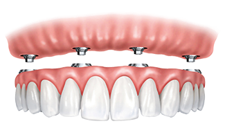 Fix-on-Four Dental Implant Supported Dentures in Glendale, CA