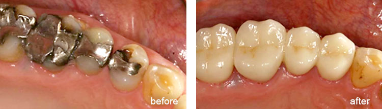 Before & Afters - Complex Dental Treatment