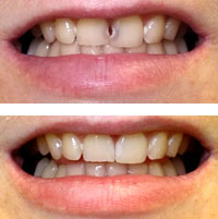 Porcelain Veneers in Glendale