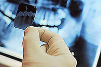 State-of-the-Art Technology - Digital X-rays