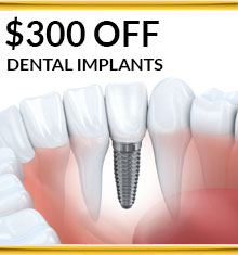 $300 Off Dental Implants