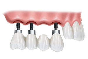 Implant Supported Bridges in Glendale, CA