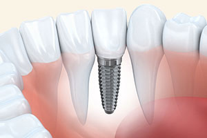 Dental Implants in Glendale, CA