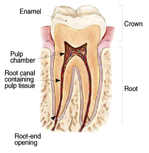 Root Canal Therapy in Glendale