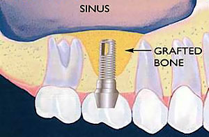 Sinus Lift After - With Dental Implant