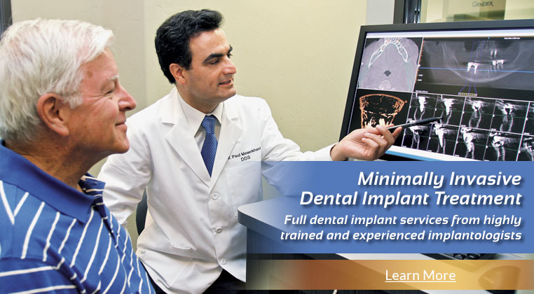 Minimally Invasive Dental Implant Treatment! Full dental implant services from highly trained and experienced implantologists.