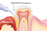 State-of-the-Art Technology - Arestin Antibiotic Therapy