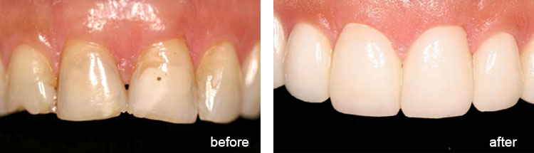 Before & After - Cosmetic Dentistry