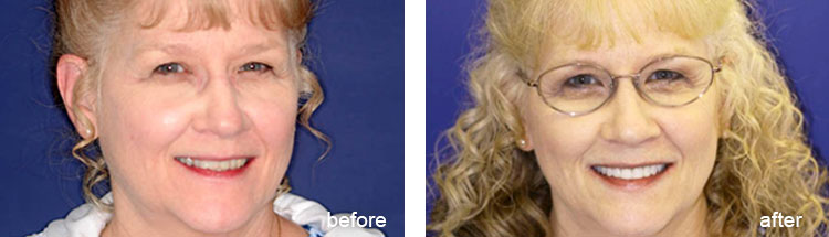 Before & Afters - Full-Mouth Reconstruction