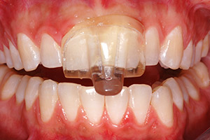A non-invasive oral appliance helps prevent teeth clenching during sleep and helps your jaw relax.