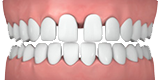 Spaced Teeth - Invisalign